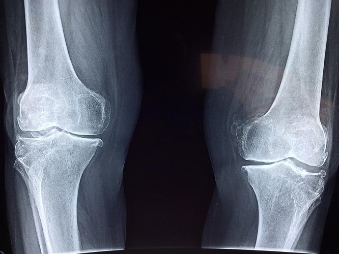 関節のレントゲン